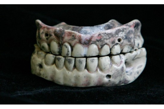200 Year Old Dentures Displayed For World Smile Day